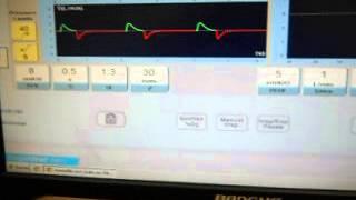 Simulador de respirador artificial