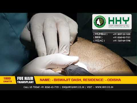 ENTIRE Hair Transplant Surgery Video - Beginning to End @ HHY Hair Transplant Clinic India