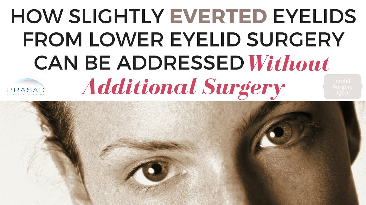 Ectropion and Lower Lid Retraction after Eyelid Surgery ...