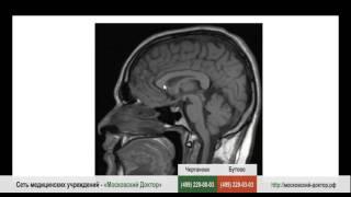 что показывает рентген головного мозга