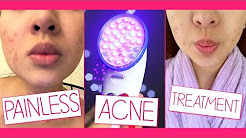 hqdefault - Red And Blue Light Treatment For Acne