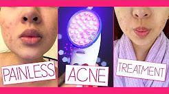 hqdefault - Nuve Blue Acne Treatment Reviews