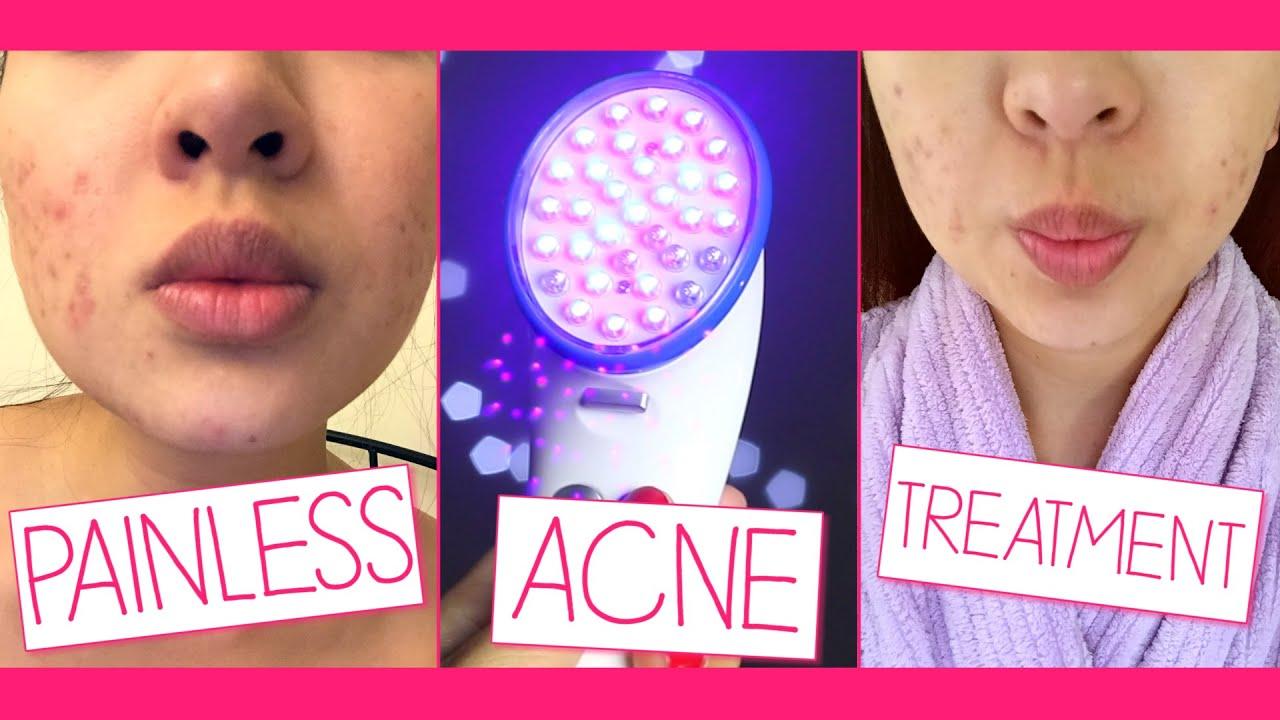 Painless Acne Treatment
