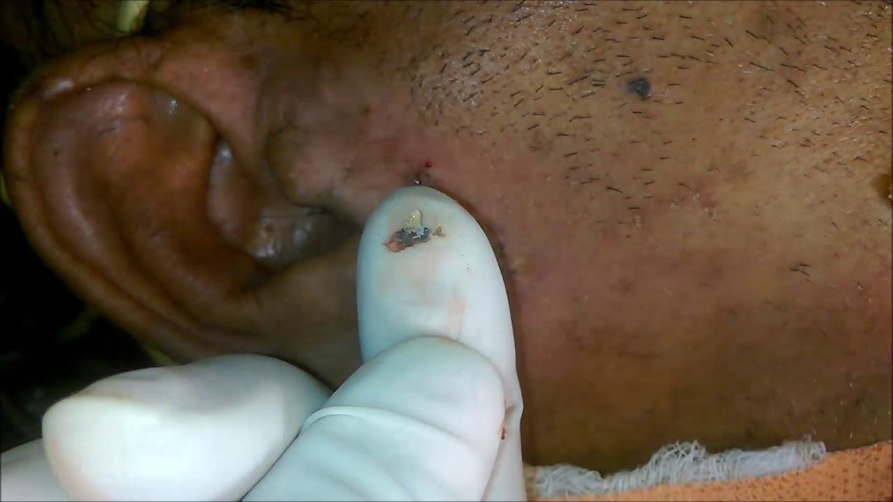 Blackheads On Ear Lobe