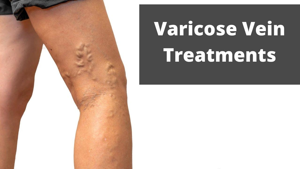 varicoză internă pentru femei