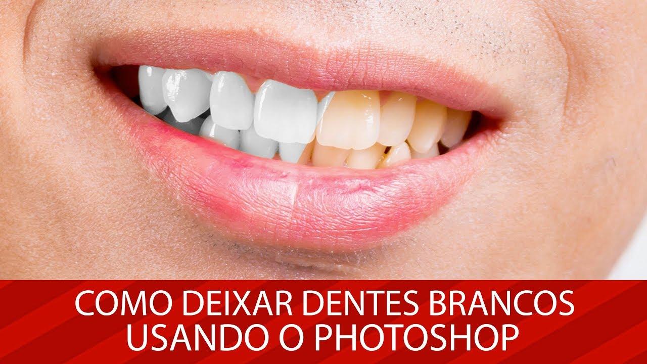 Como Deixar Dentes Brancos Usando O Photoshop Youtube