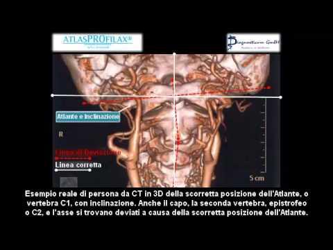 Imaging e AtlasPROfilax®: Deviazione Cranio Caudale dell'Atlante.