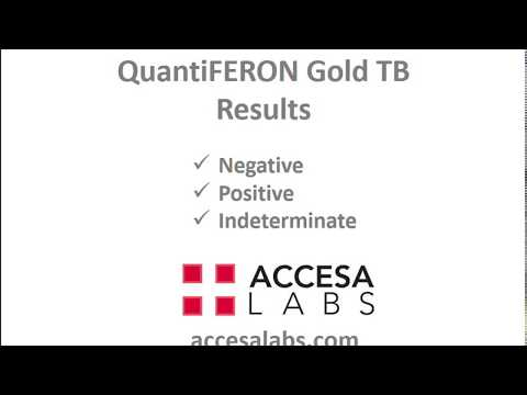 TB Blood Test: QuantiFERON Gold TB Blood Test Results Overview