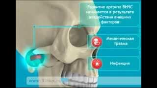 видео Артрит височно нижнечелюстного сустава