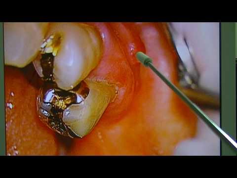 歯茎が腫れた 抜かない治療方法と費用を説明してほしい