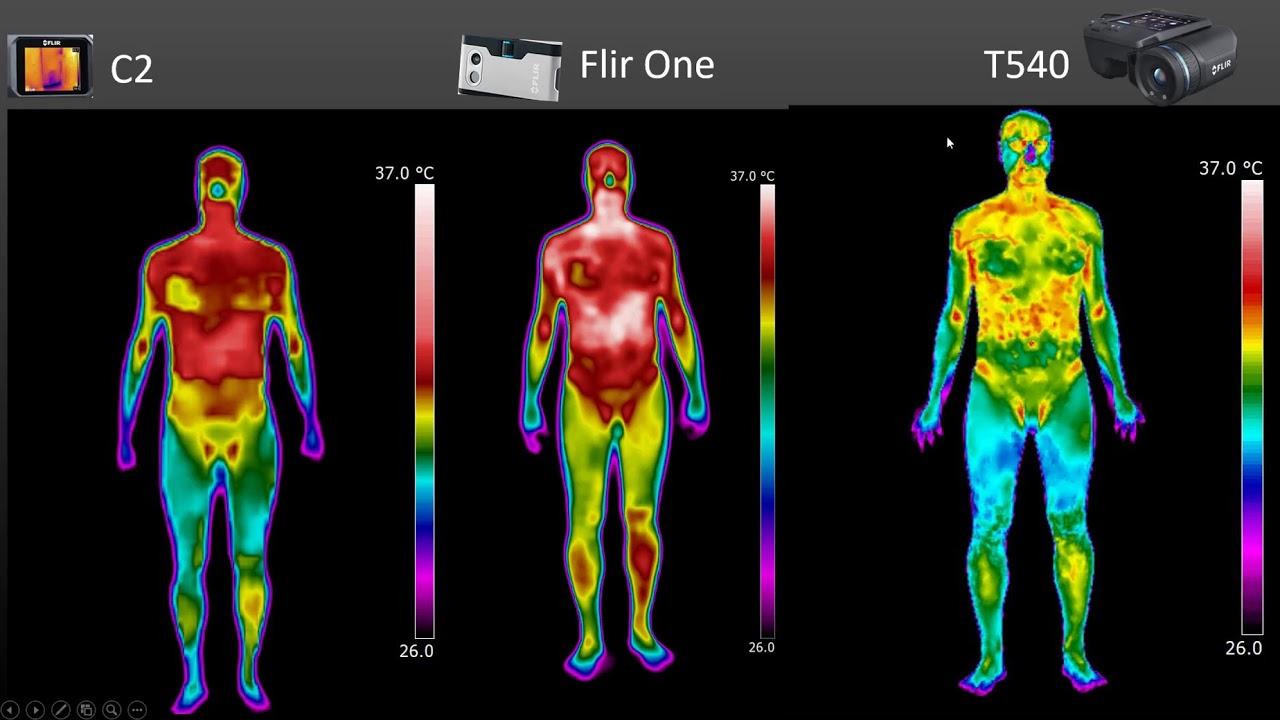 Qual câmera térmica para uso clínico escolher?