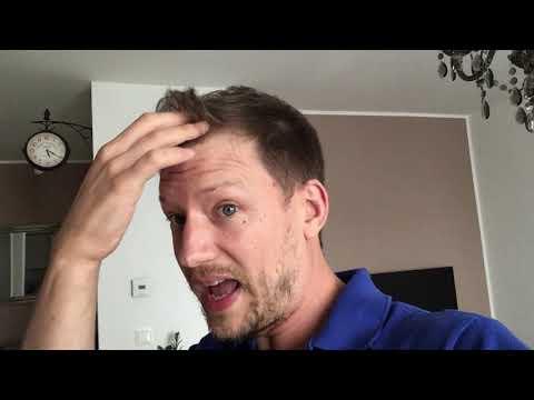 what-happens-when-you-quit-minoxidil-/-rogaine?