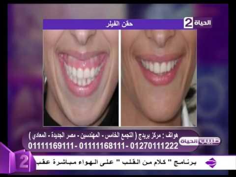 طبيب الحياة - ما هو الجديد في عمليات تجميل الأسنان - د. أحمد السباعي - أخصائي تجميل الأسنان