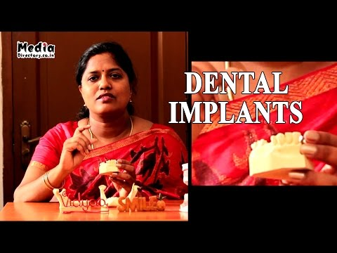 Dental Implant Treatment   Dr. Vidyaa Hari Iyer    Media Directory