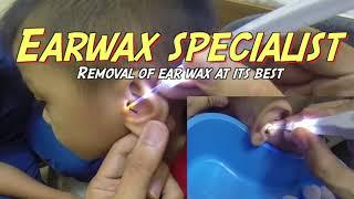 Hard Earwax Removal Using Hydrogen Peroxide as Ear wax Softener