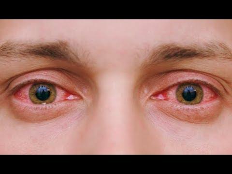 Как быстро убрать красноту глаз