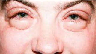 Causan por hinchados ¿las alergias llorar ojos