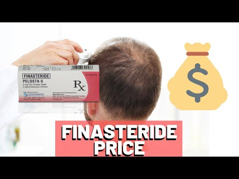 finasteride-price-2019---worth-it?-cheapest-source?