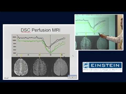 Introducing MRI: Perfusion Imaging (53 of 56)