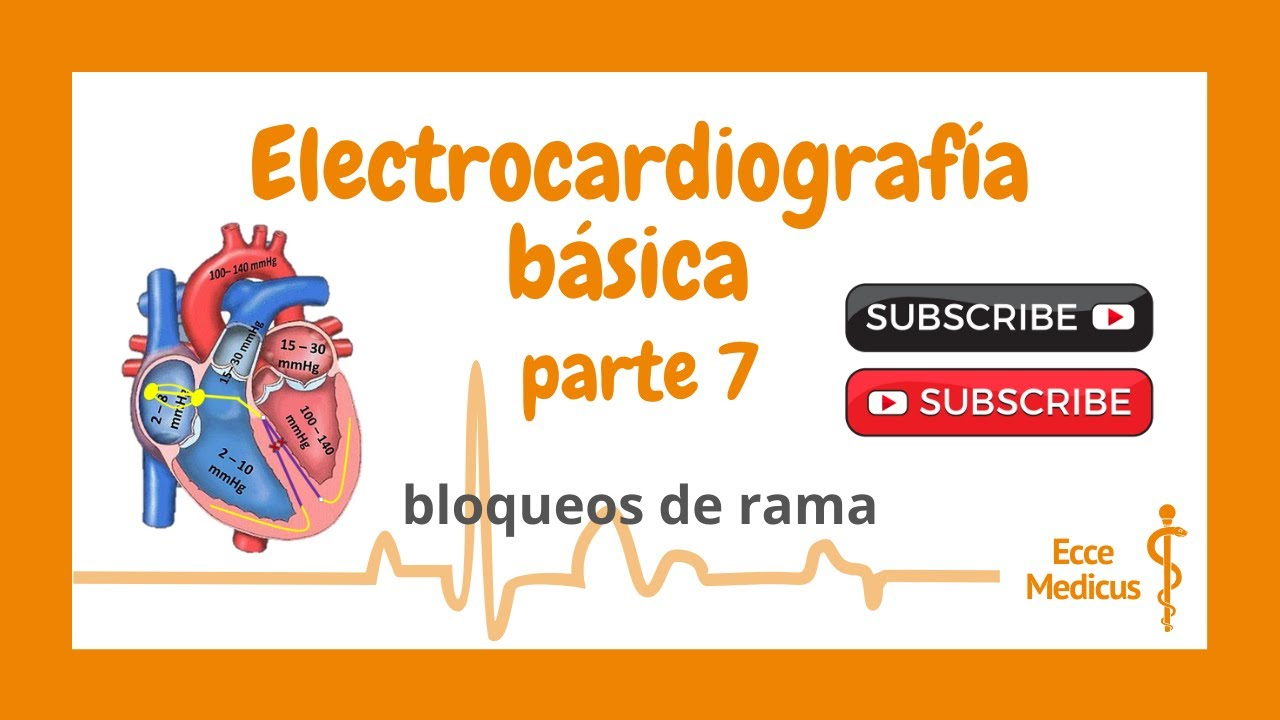 Bloqueos de Rama en el ECG. Video explicativo.