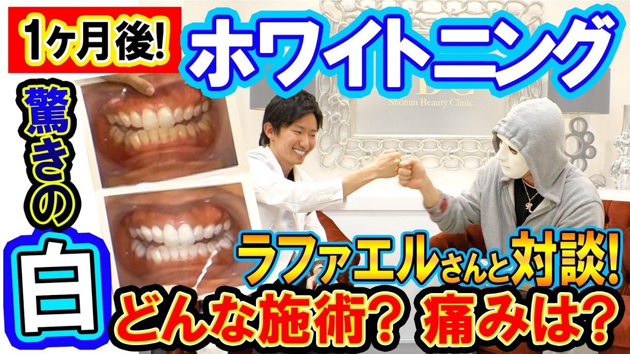 湘南 美容 外科 ホワイトニング
