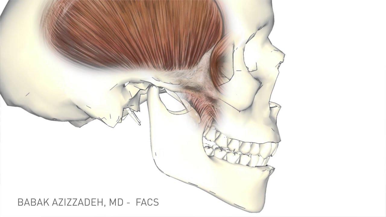 Temporalis Tendon Transfer | Facial Paralysis Surgery ...