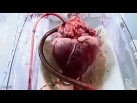 Kalp Nasıl Çalışır Kalbin Çalışma Mantığını Anlatan Güzel Bir Vİdeo Olmuş