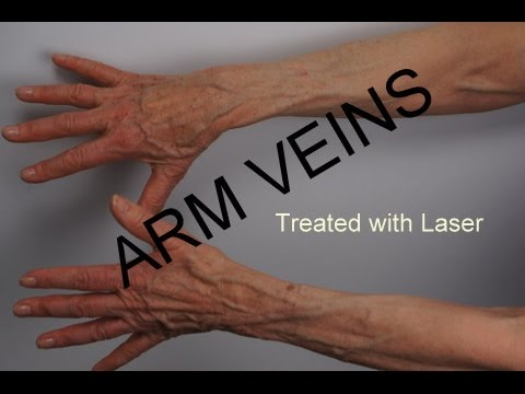 arm veins treated by laser - youtube, Cephalic Vein
