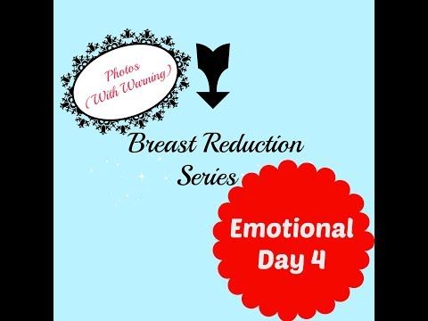 Emotional Breast Reduction Recovery Update // Day 4 // Photos (Pre-Warning)
