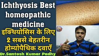 Best homeopathic medicine For Ichthyosis.