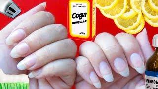 Отбеливание ногтей в домашних условиях 7 лучших способов Уход за ногтями Осветляем пластину