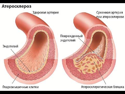 Атеросклероз артерий конечностей мкб