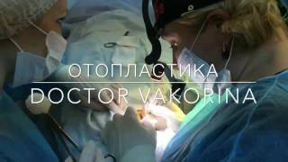 ОТОПЛАСТИКА операция, видео до и после(ОТОПЛАСТИКА - выполняется под местной анестезией. Швы снимают на 8 сутки. После операции необходимо носить..., 2016-12-02T23:22:49.000Z)