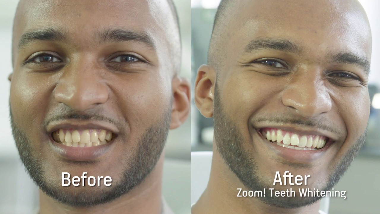 Philips Zoom Teeth Whitening Treatment By Mydentist Youtube