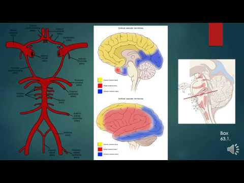 Ischemic Cerebrovascular Disease