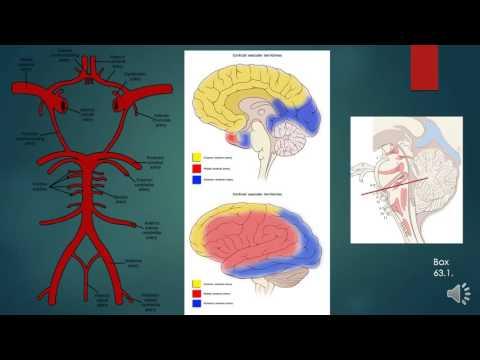 Trusted, progressive neuropathy paraproteinaemic demyelinating effects