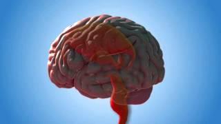فيلم الاستسقاء الدماغي وزراعة انبوب التصريف