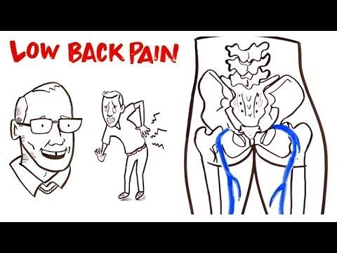hqdefault - Patho Of Back Pain
