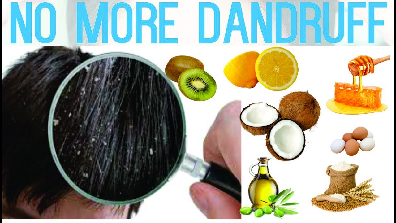 Watch How to Prevent and Treat Dandruff video