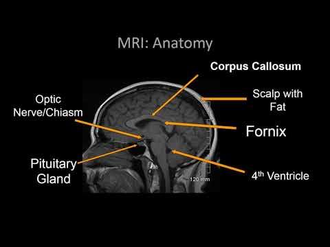 Brain Anatomy MRI- Neuroradiology