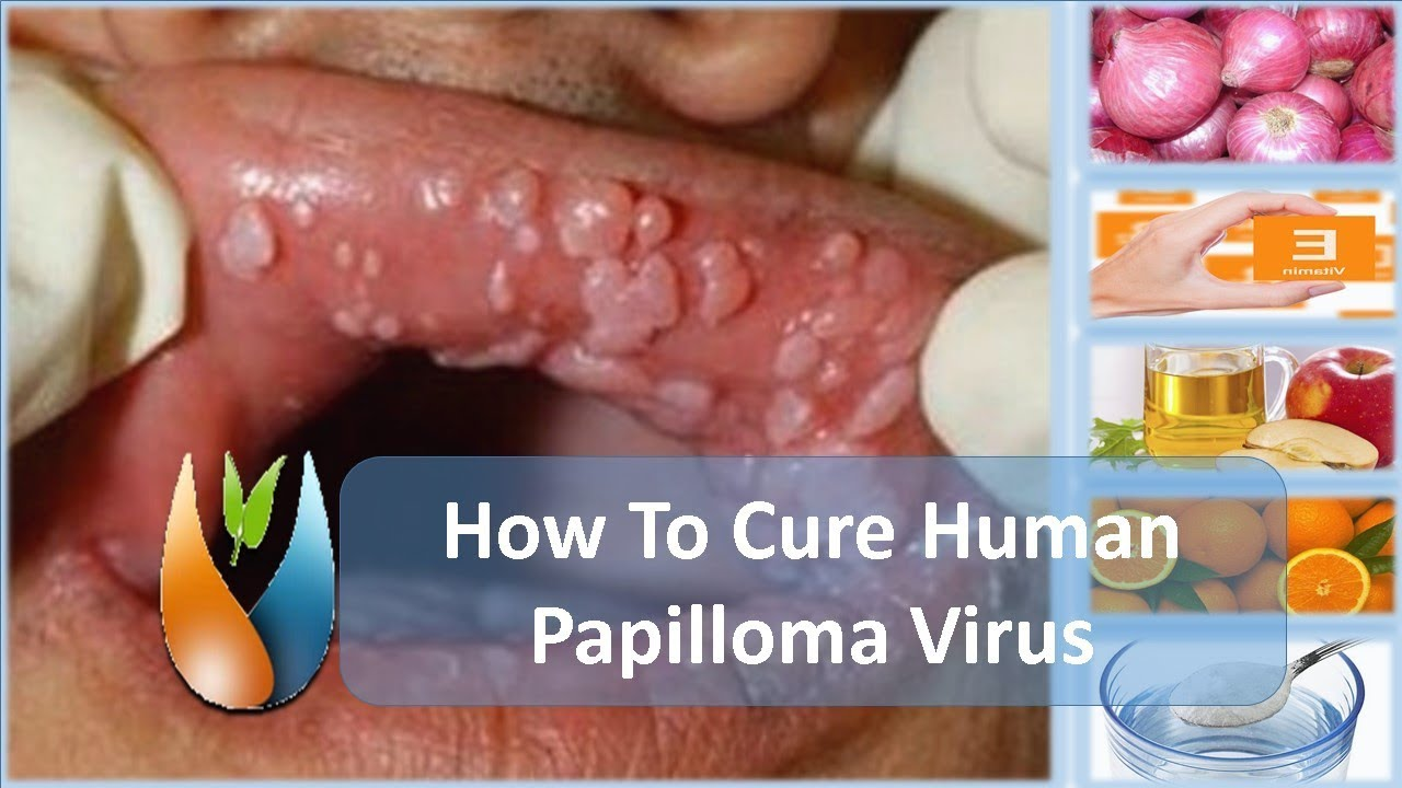 How to get rid of papillomas at home forever