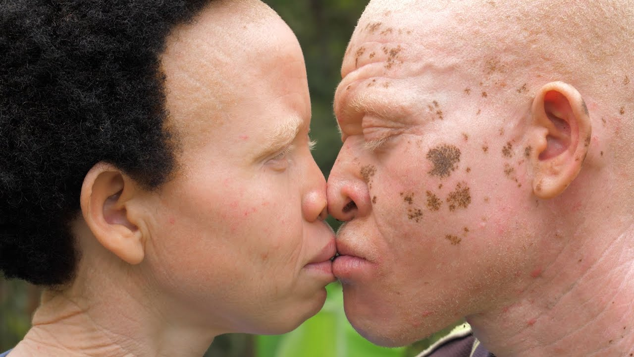 The Couple With Albinism | BORN DIFFERENT