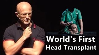 World's First Human Head Transplant by Dr Sergio Canavero in 2017