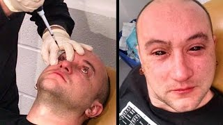 Eye Injections Allow Night Vision?!