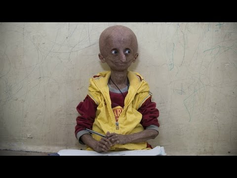 Teen With Progeria Ageing Syndrome Celebrates Milestone 15th Birthday