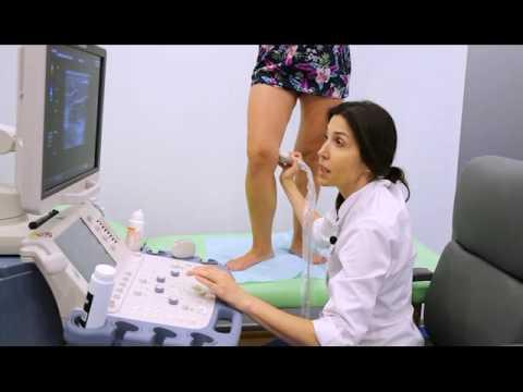 Дуплексное сканирование вен.Лазерное лечение варикоза