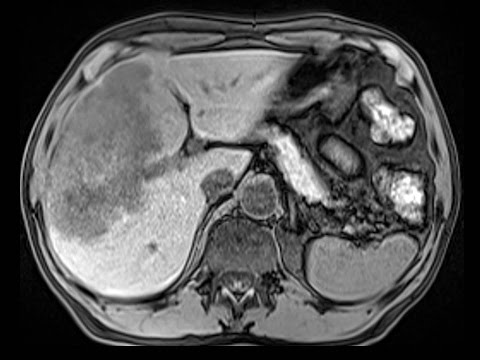 synchronous colon cancer and large liver metastasis: curative resection