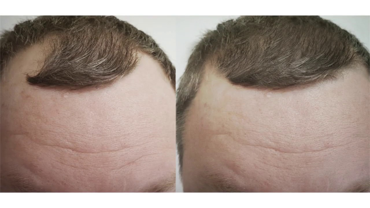 Best Laser Hair Growth Device | 844-454-4377