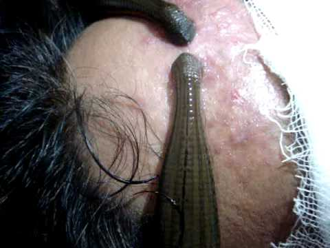 Leech Therapy In Ayurveda - iwate-kokyo