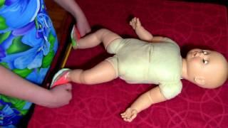 Лечение врожденной косолапости.Физкультура при ношении брейсов
